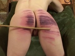 Fixed Caning